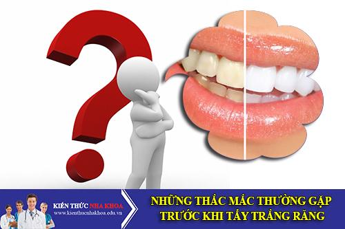 Những Thắc Mắc Thường Gặp Trước Khi Tẩy Trắng Răng