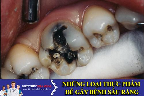 Những Loại Thực Phẩm Dễ Gây Bệnh Sâu Răng