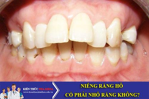 Niềng Răng Hô Có Phải Nhổ Răng Không?