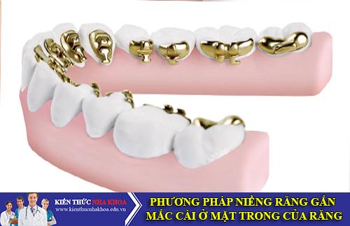 Phương Pháp Niềng Răng Gắn Mắc Cài Ở Mặt Trong Của Răng
