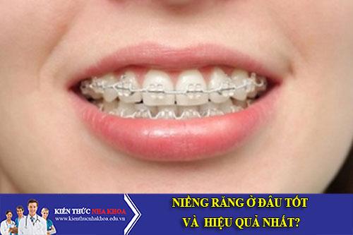 Niềng Răng Ở Đâu Sẽ Hiệu Quả Nhất?