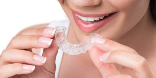 Niềng răng vô hình giá bao nhiêu? Có tốt không?