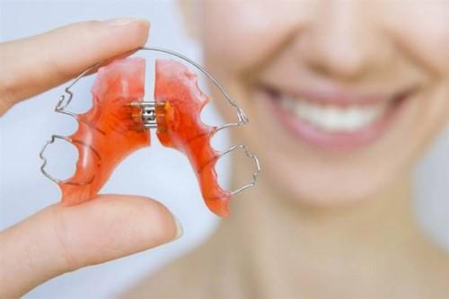 HỎI ĐÁP - Niềng răng xong không đeo hàm duy trì được không?