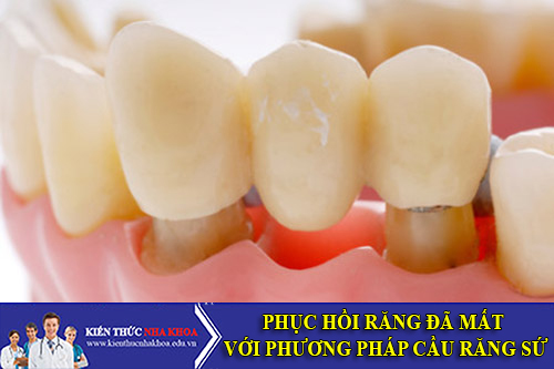 Phục Hồi Răng Đã Mất Với Phương Pháp Cầu Răng Sứ