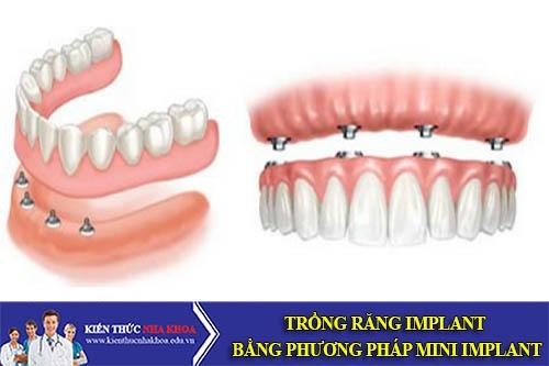 Trồng Răng Implant Bằng Phương Pháp Mini Implant