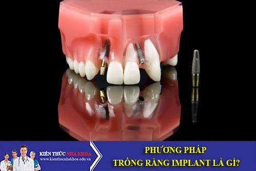 Phương Pháp Trồng Răng Implant Là Gì?