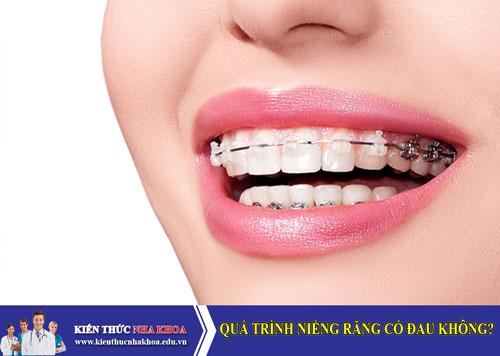 Quá trình niềng răng có đau không?