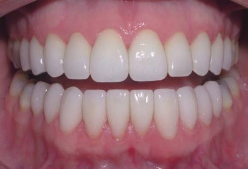Thực Tế - Chi Tiết Quá Trình Trồng Implant Răng Cửa