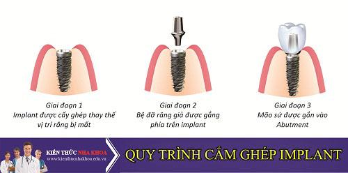 Quy Trình Cắm Ghép Răng Implant Đúng Chuẩn