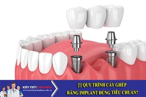 [!] Quy Trình Cấy Ghép Răng Implant Đúng Tiêu Chuẩn?