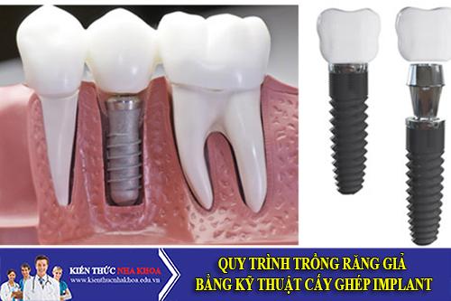Quy Trình Trồng Răng Giả Bằng Kỹ Thuật Cấy Ghép Implant