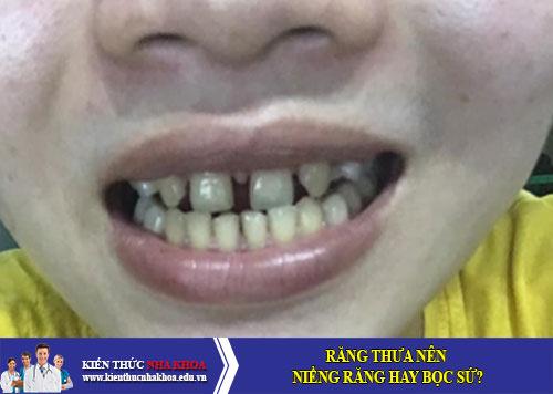 Răng thưa nên niềng răng hay bọc sứ?