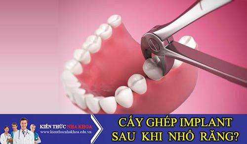 Sau Khi Nhổ Răng Có Cấy Ghép Implant Liền Được Không?