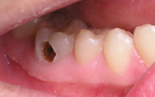 Sâu Răng Và Tác Hại Của Sâu Răng