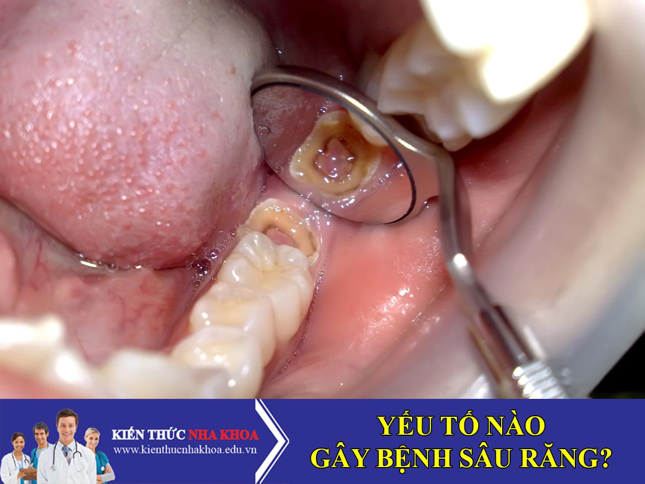 Các Yếu Tố Quan Trọng Gây Nên Bệnh Sâu Răng