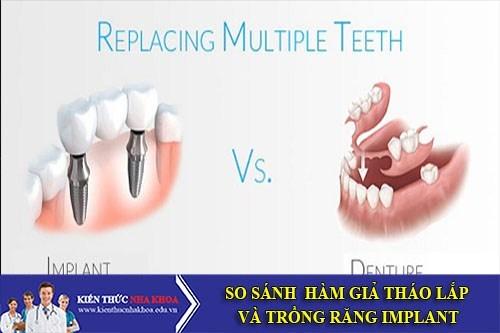 [Kiến Thức] So Sánh Hàm Giả Tháo Lắp Và Trồng Răng Implant