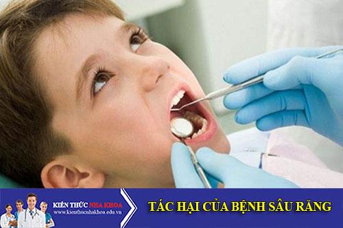 Sâu Răng Và Tác Hại Của Bệnh Sâu Răng