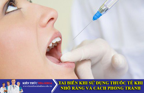 Tai Biến Khi Sử Dụng Thuốc Tê Nhổ Răng Và Cách Phòng Tránh