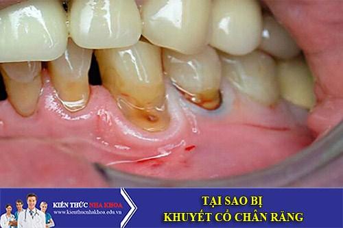 Tại Sao Bị Khuyết Cổ Chân Răng?