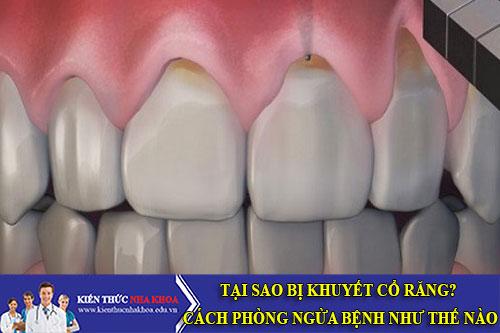 Tại Sao Bị Khuyết Cổ Răng? Cách Phòng Ngừa Bệnh Như Thế Nào