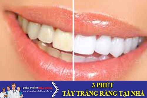 Tẩy Trắng Răng Tại Nhà Chỉ Mất 3 Phút