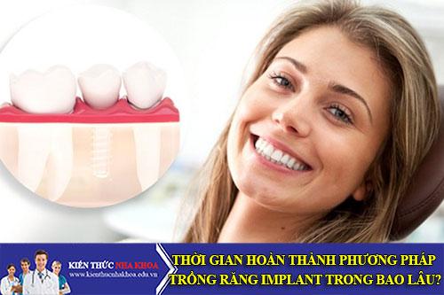 Thời Gian Hoàn Thành Phương Pháp Trồng Răng Implant Trong Bao Lâu?