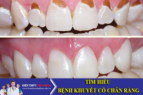 Tìm Hiểu Bệnh Khuyết Cổ Chân Răng
