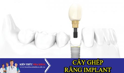 Tổng Quan Về Cấy Ghép Răng Implant