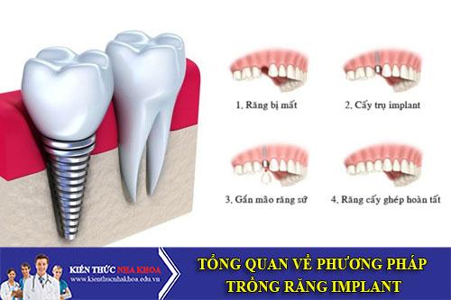 Tổng Quan Về Phương Pháp Trồng Răng Implant
