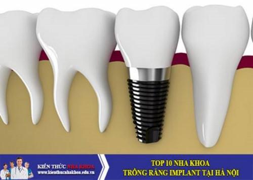 Top 10 Nha Khoa Trồng Răng Implant Tại Hà Nội