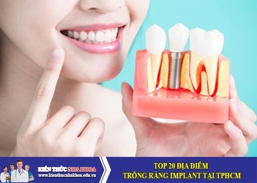 Top 20 Địa Điểm Trồng Răng Implant Tại TPHCM