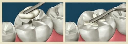 Những Trường Hợp Cần Thiết Phải Trám Răng