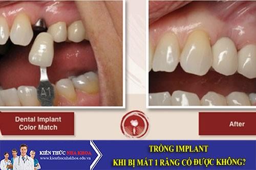 Trồng Implant Khi Bị Mất 1 Răng Có Được Không?
