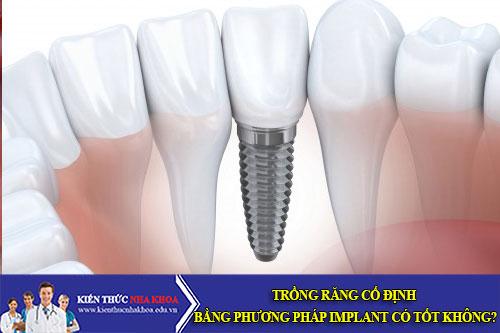 Trồng Răng Cố Định Bằng Phương Pháp Implant Có Tốt Không?