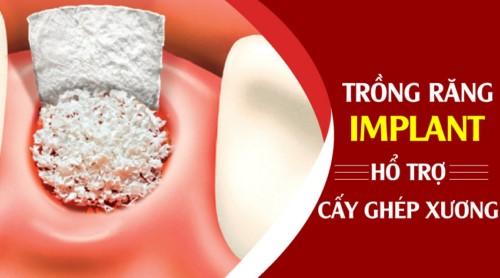 Nha Khoa Đông Nam Cấy Ghép Xương Miễn Phí Cho Bệnh Nhân Mất Răng Lâu Năm