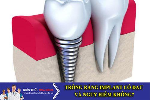 Trồng Răng Implant Có Đau Và Nguy Hiểm Không?