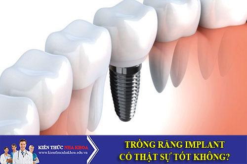 Trồng Răng Implant Có Thật Sự Tốt Không?