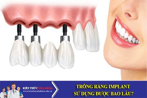 Trồng Răng Implant Sử Dụng Được Bao Lâu?