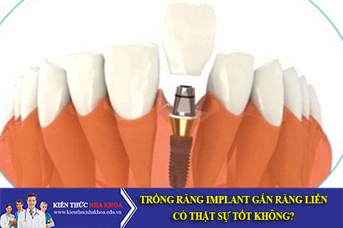 Trồng Răng Implant Gắn Răng Liền Có Thật Sự Tốt Không?