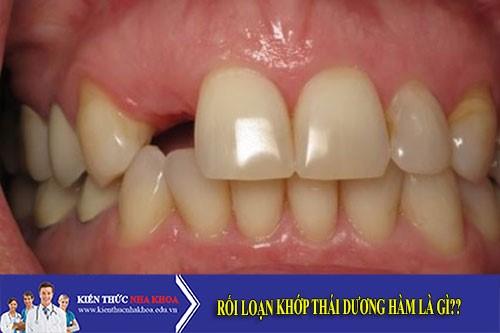 Trồng Răng Implant Nên Chọn Loại Trụ Nào?