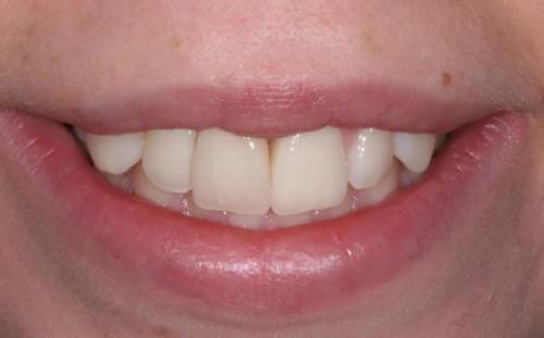Kinh Nghiệm Trồng Răng Khi Bị Gãy Răng