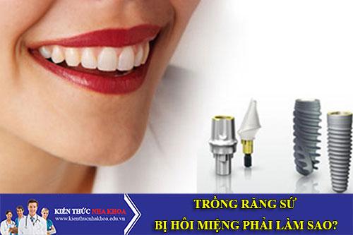 Trồng Răng Mất Với Kĩ Thuật Cấy Ghép Implant