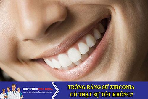 Trồng Răng Sứ Zirconia Có Thật Sự Tốt Không?