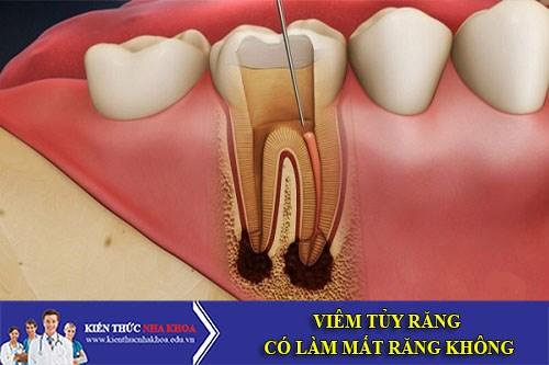 Viêm Tủy Răng Có Làm Mất Răng Không?
