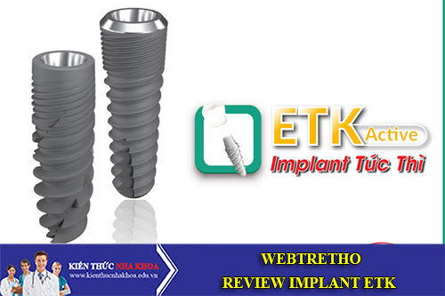 Webtretho Nói Gì Về Trụ Implant ETK Active
